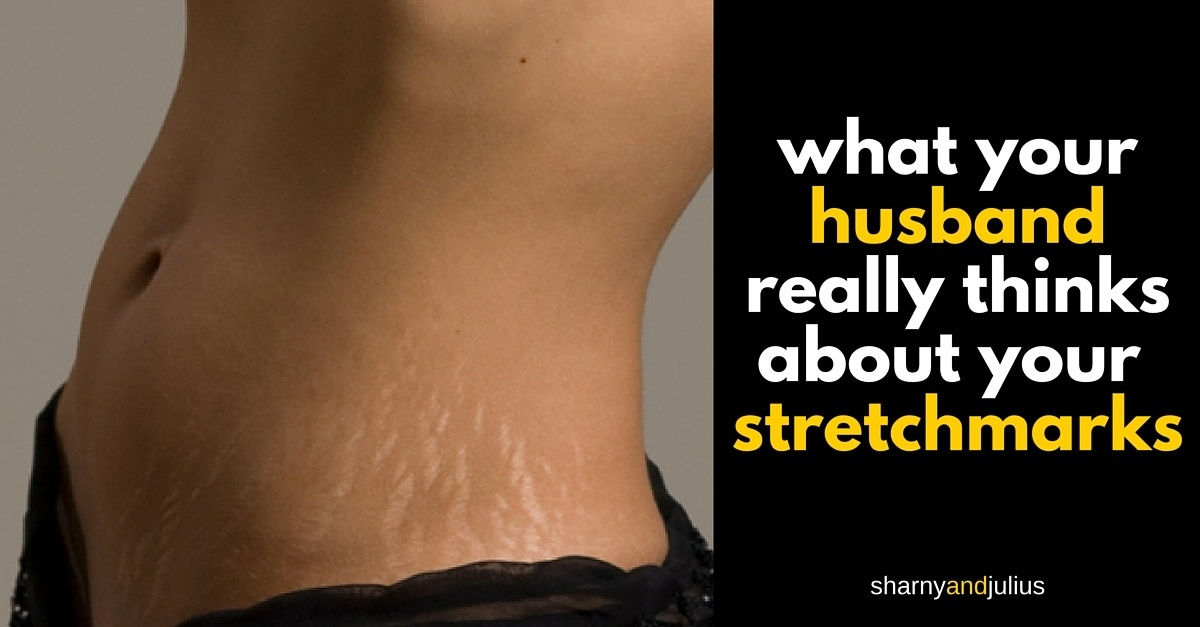 Stretch Marks What Your Husband Really Thinks Stretch marks often fade with time. stretch marks what your husband really